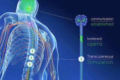 spinal cord injury treatment neurostimulation