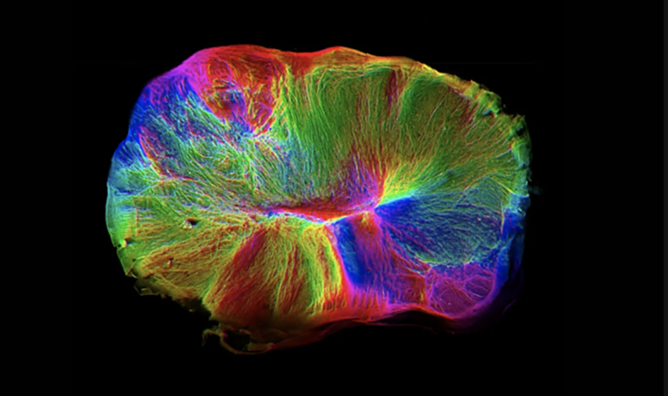 An image of the cerebral organoids grown from stem cells by Cambridge researchers. Photograph: MRC Laboratory of Molecular Biology