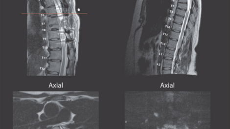 Severe spinal cord injury with associated myelomalacia in both participants. (Neurotrama)