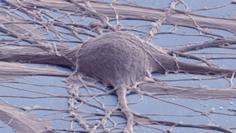 Scanning electron micrograph of cultured human neuron from induced pluripotent stem cell. Photo credit: Mark Ellisman and Thomas Deerinck, National Center for Microscopy and Imaging Research, UC San Diego