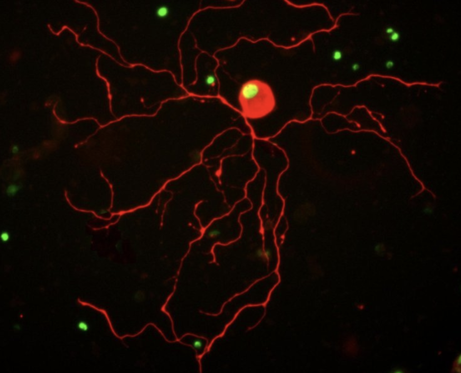 A dorsal root ganglion neuron treated with the CBP-activator drug CSP-TTK21. Red - neuronal marker (Beta-III-tubulin) and green - H4K8 acetylation. Credit: Simone Di Giovanni and Thomas Hutson / Imperial College London