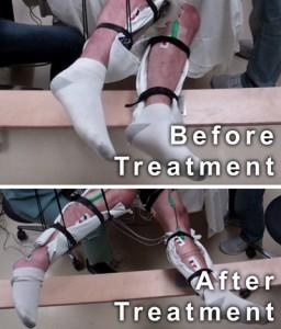 transcutaneous stimulation